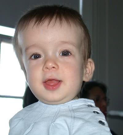Dziecko z kraniostenozą - przykładowe zdjęcie