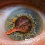 Jak naturalnie usunąć pasożyty z organizmu?