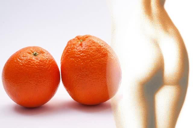 Jak się pozbyć cellulitu? Te 4 sposoby przywrócą jędrność Twojej skórze!