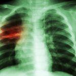 Uwaga na zapalenie płuc