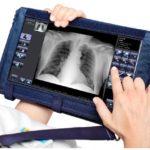 W jakich przypadkach stosuje się RTG klatki piersiowej?