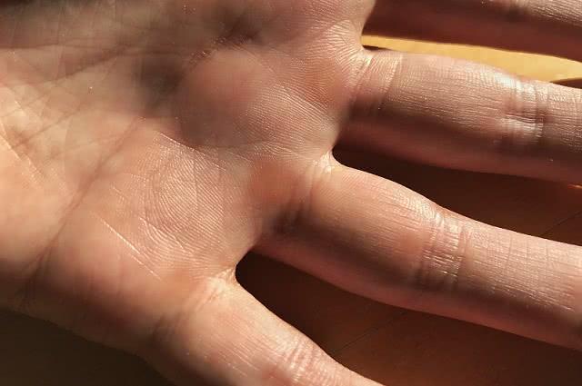 Odciski i otarcia dłoni w treningu siłowym